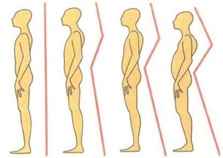 Лечебная гимнастика для сколиоза 2 степени у детей