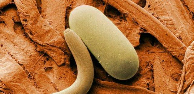 как избавиться от паразитов в организме дома