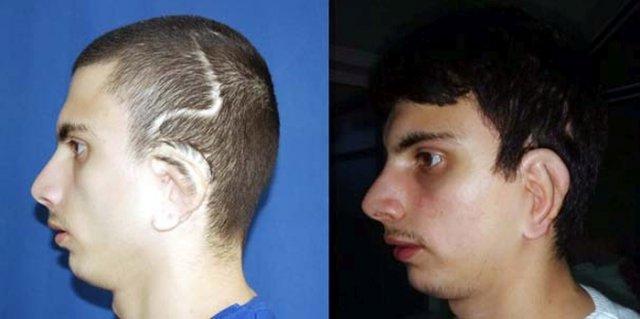 В Турции для пациента выращена ушная раковина из ребра его матери