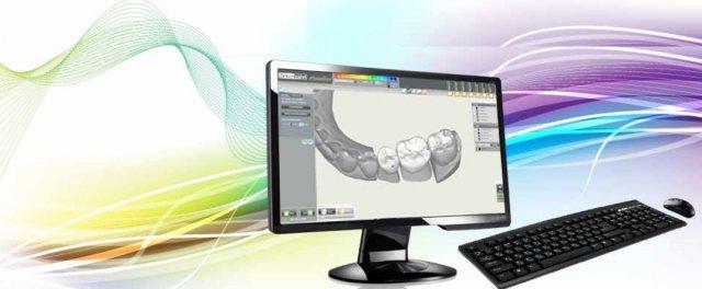 Выбор фрезерного станка с ЧПУ для стоматологического фрезерного центра