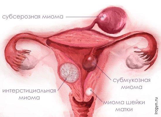 Возможно ли забеременеть при миоме матки