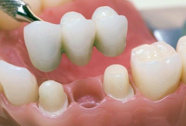 Лечение зубов в клинике «Дент Арт»  2