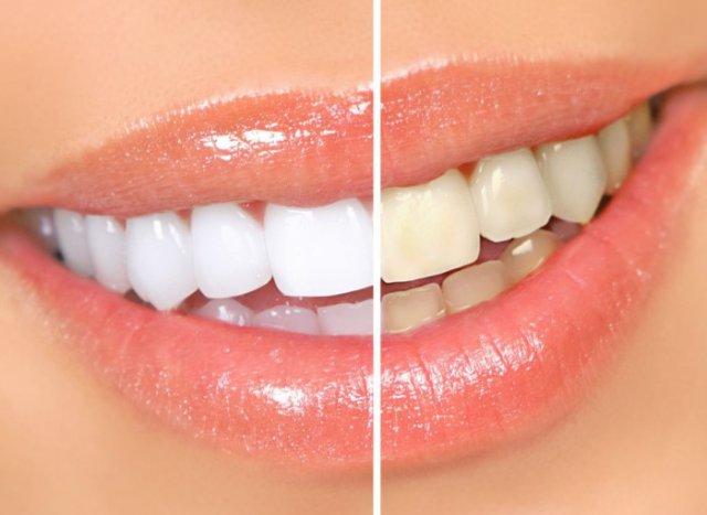 Лазерное отбеливание зубов — почему стоит решиться на эту процедуру