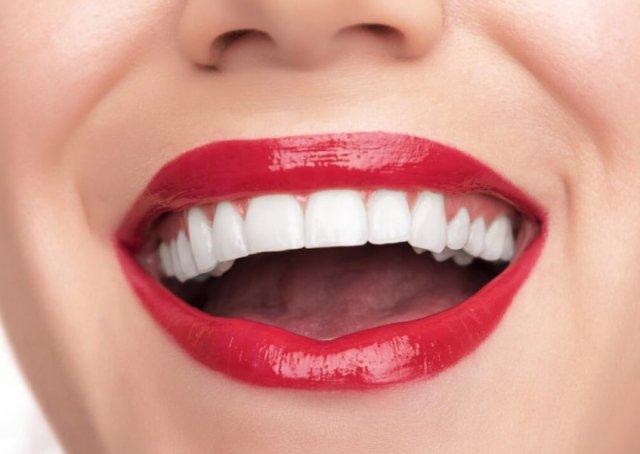 Виниры на зубы в стоматологии «Люми-Дент»