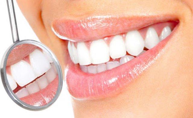 Что такое наращивание зуба и 6 причин обратиться к специалисту