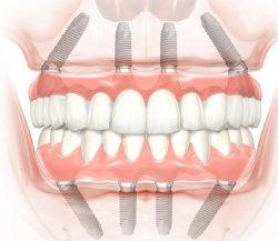 Современные методы имплантации всех зубов за 1 день