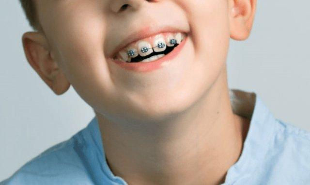 Брекеты для детей в стоматологии www.aktivstom.ru
